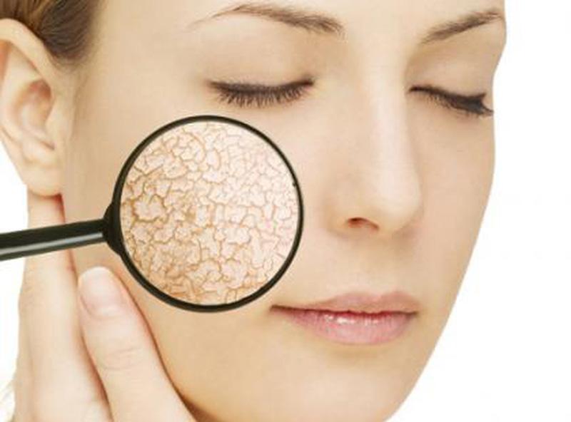 Da khô có những dấu hiệu khá rõ để nhận biết - chăm sóc da mùa đông